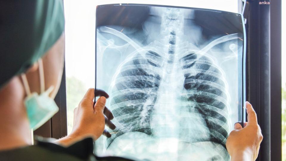 Akciğer kanseri tanısı oranı pandemi döneminde 5 kat arttı